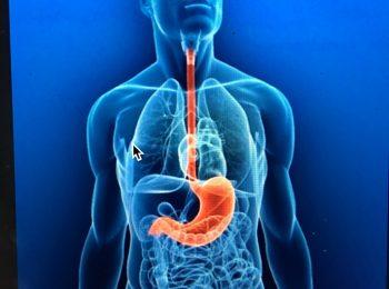 Che cos'è la Malattia da reflusso gastro-esofageo ?