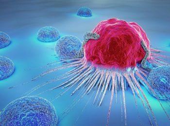 Il Cancro: cos'è e quali sono gli approcci terapeutici