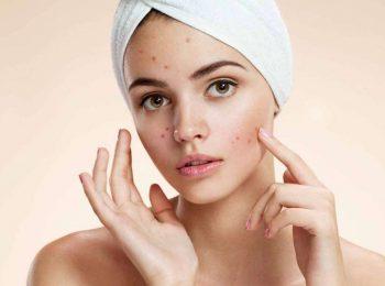 Come trattare le pelli impure tendenti ad acne?