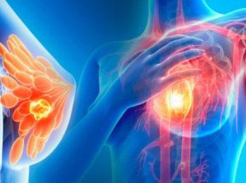 TUCATINIB: nuove speranze per il cancro al seno metastico HER2+