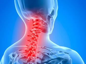 CERVICALGIA: sintomi, cause e rimedi