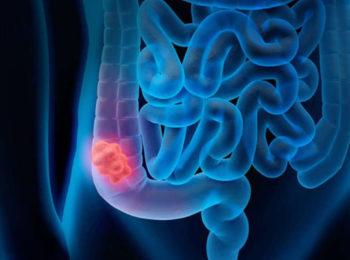 Tumore del colon retto: screening, sintomi, diagnosi e terapia