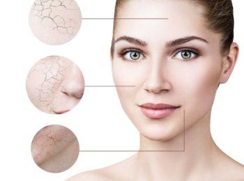 Dermocosmesi: pelle secca, caratteristiche e rimedi