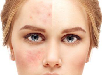 Dermocosmesi: pelle mista-impura e pelle grassa.