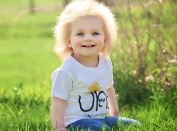 Sindrome dei capelli impettinabili: una rara e curiosa malattia