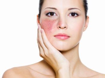 Focus rosacea: sintomi, cause e rimedi