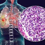 Microcitoma: il Carcinoma polmonare a piccole cellule