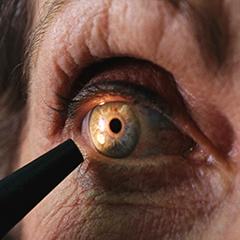 GLAUCOMA – MALATTIA SILENZIOSA