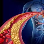 Perchè il colesterolo alto è pericolo?