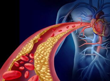 Perchè il colesterolo alto è pericoloso?